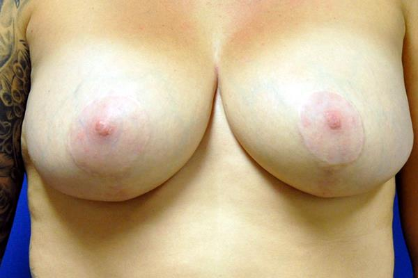 breast_lift_front_after.jpg
