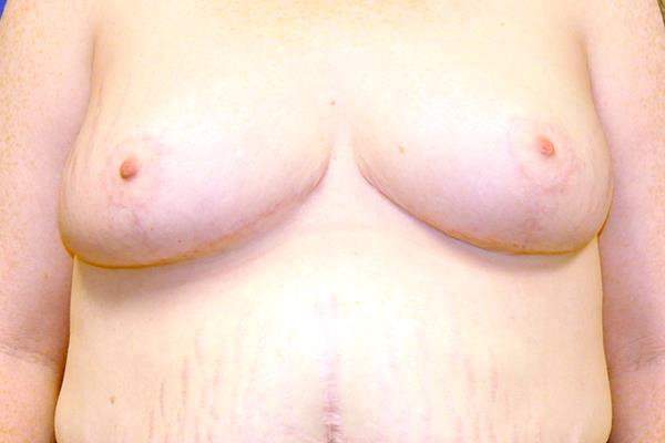 Breast Reduction Patient 3 Post Operation