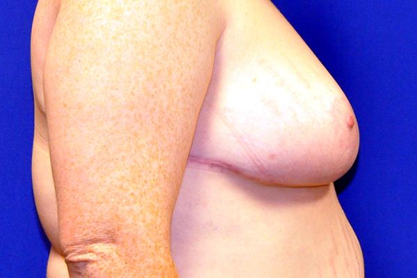 Breast Reduction Patient 3 Side Post Operation