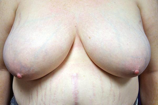 Breast Reduction Patient 3 Pre Operation